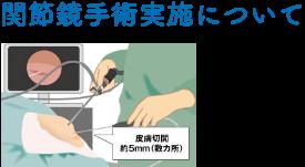 関節鏡手術実施について